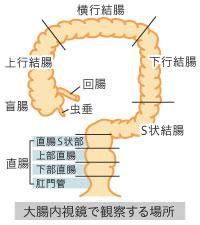img_endoscopy11