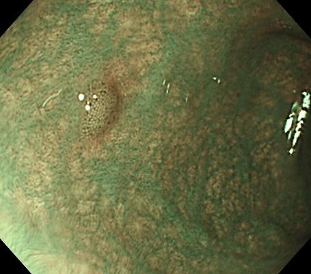 大腸ポリープNBI画像