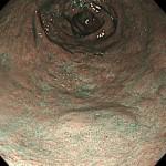 胃隆起性病変NBI画像